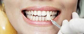 Красота в стоматологии: виниры и циркониевые коронки