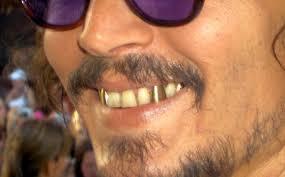 Золотые зубы снова в моде