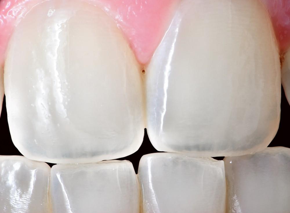 Состав и особенности зубной эмали