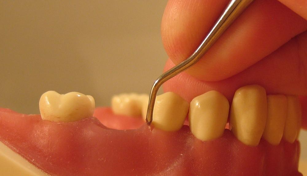 Альвеола зуба