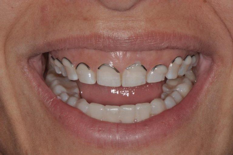 Десневая улыбка и синдром коротких зубов: этиопатогенез, классификация, критерии диагностики