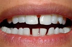 Редкие зубы: в чем опасность и как исправить
