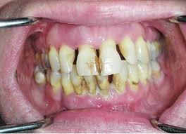 Больные зубы и бронхит: связь есть!