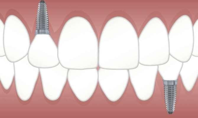 Применение электрохимической терапии для более эффективного лечения инфекции после фиксации зубных имплантатов