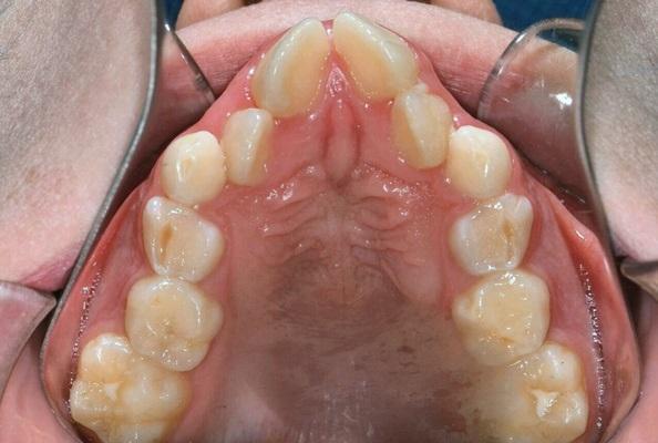 Основы профилактической ортодонтии