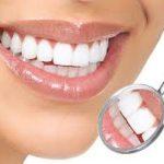 Продукты, укрепляющие зубную эмаль