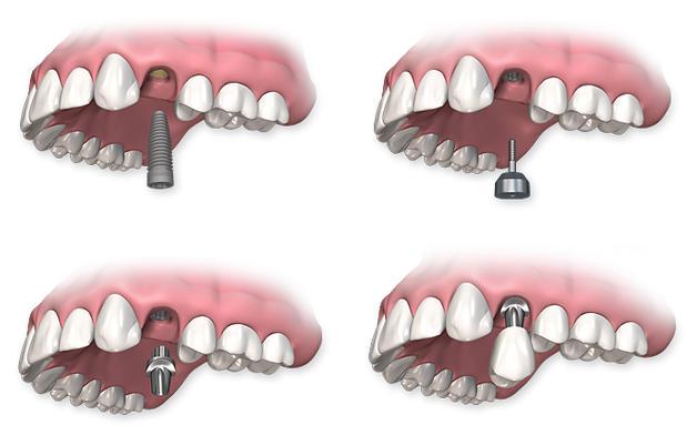 Зубная имплантология
