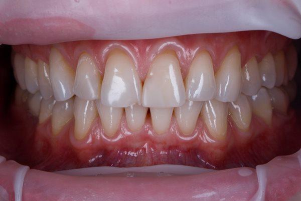 Восстановление эстетики улыбки, не забывая о функции