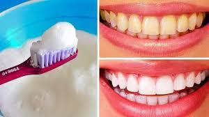 Как легко и быстро отбелить зубы дома