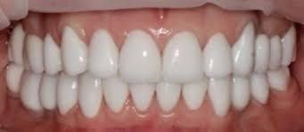 Циркониевые коронки для зубов
