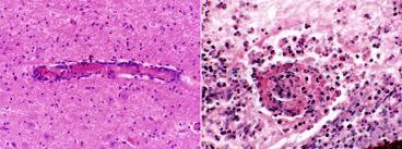 В эмболах, приводящих к инсульту головного мозга, впервые обнаружили бактерии ротовой полости