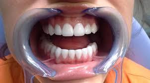 Как ухаживать за керамическими зубными протезами