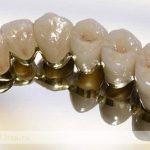 Виды металлокерамических протезов