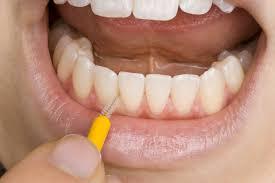Уход за несъемными зубными протезами