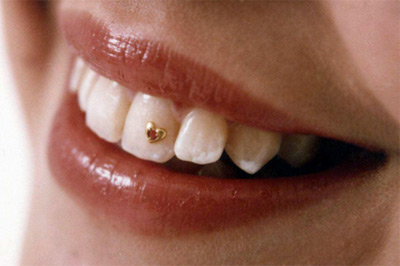 Скайсы — зубные украшения