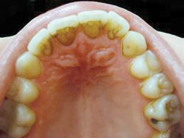 Вред, наносимый бактериями зубного налёта
