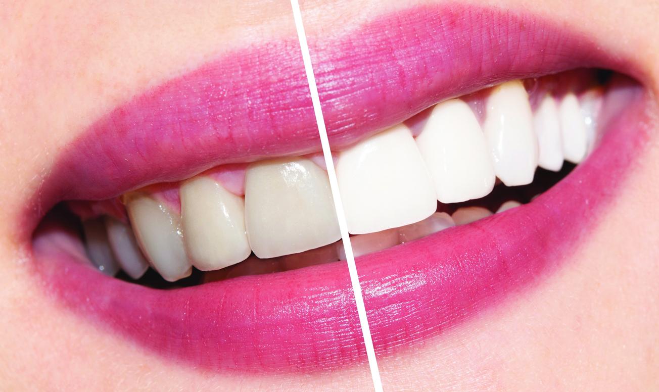 Ламинирование — один шаг к белоснежной улыбке