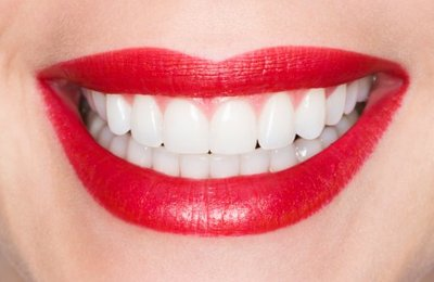 Эстетическая стоматология – красота и здоровье одновременно