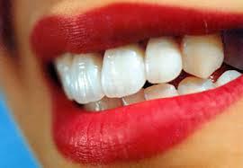 Как избежать появления зубного налета