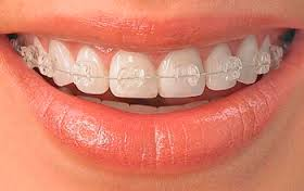 Услуги стоматологической клиники — от отбеливания до сложного протезирования