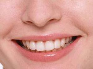 Как избавиться от зубного камня и налета