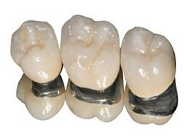 Особенности протезирования зубов металлокерамикой