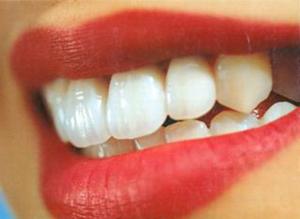 Протезирование зубов — основа ортопедии