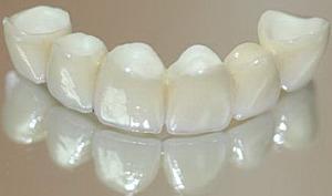 Здоровье зубов и зубной мост