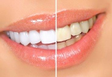 Продукты питания, которые могут изменить цвет ваших зубов