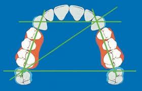Лечение частичного отсутствия зубов