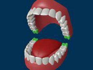 От зубов мудрости можно избавиться еще в детском возрасте