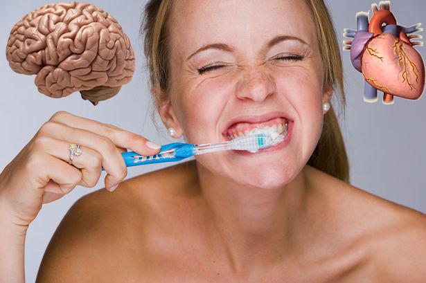 Ученые: стоматологические заболевания угрожают головному мозгу и сердцу