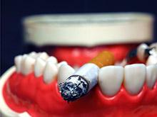 Курильщики рискуют остаться без зубов, предупреждают специалисты