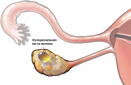 Киста яичника: симптомы, диагностика и лечение