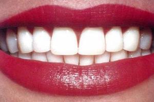 Что вредит здоровью зубов