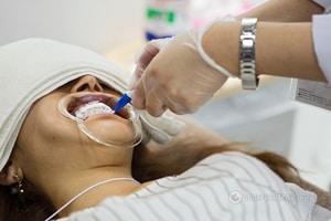 Спасение найдено: ученые создали гель, убивающий боль в зубах