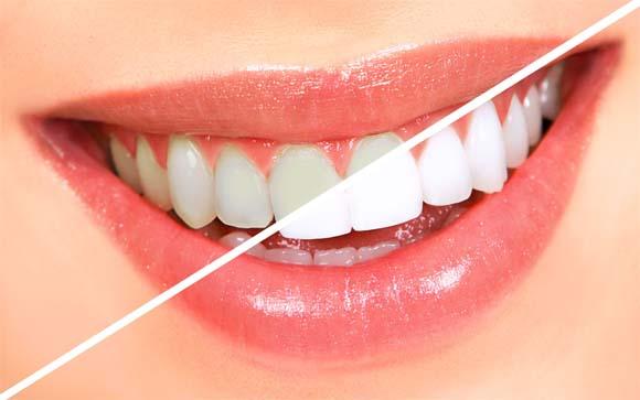 Народные методы отбеливания зубов