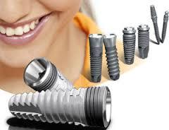 Особенности зубных имплантантов