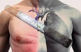 Рак легких: реабилитация и лечение в онкоцентре Онкоимунезер