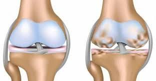 Симптомы и профилактика артрита