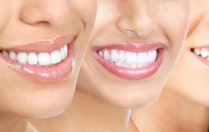 Гигиена полости рта: правила выбора зубной щетки и главные принципы ухода за зубами