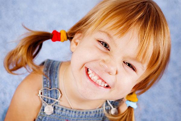 Исправление прикуса у ребенка