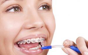 Средства для исправления улыбки, прикуса и других дефектов ротовой полости