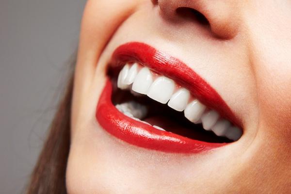 5 советов для домашнего отбеливания зубов