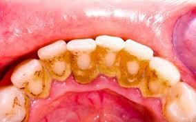 Грецкий орех и березовый сок помогут при камнях на зубах