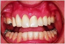 Заболевания десен: гингивит и пародонтит