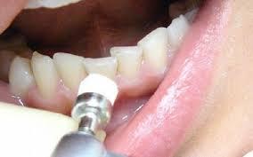 Современные стоматологические пломбы: что важно знать