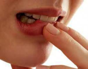 Стоматологи рассказали, как правильно лечить стоматит