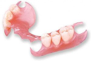 Съемное зубное протезирование — достоинства и недостатки метода.
