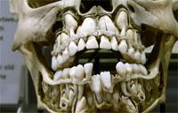 Зубной камень помог ученым проанализировать древнюю ДНК